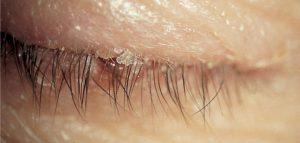 blepharitis-treatment